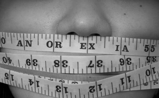 erosioni e discromie dentali dovute a disturbi dell'alimentazione