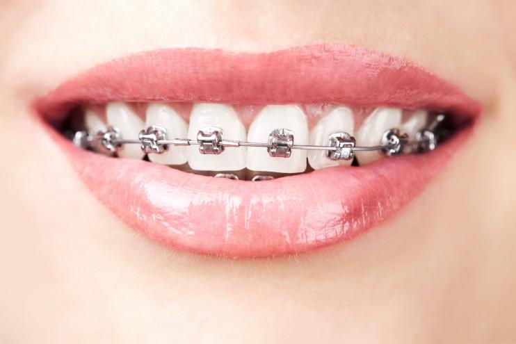 igiene orale e trattamento ortodontico