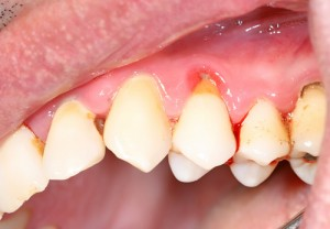 parodontite malattie cardiovascolari