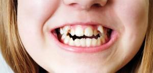 affollamento dentale nel bambino
