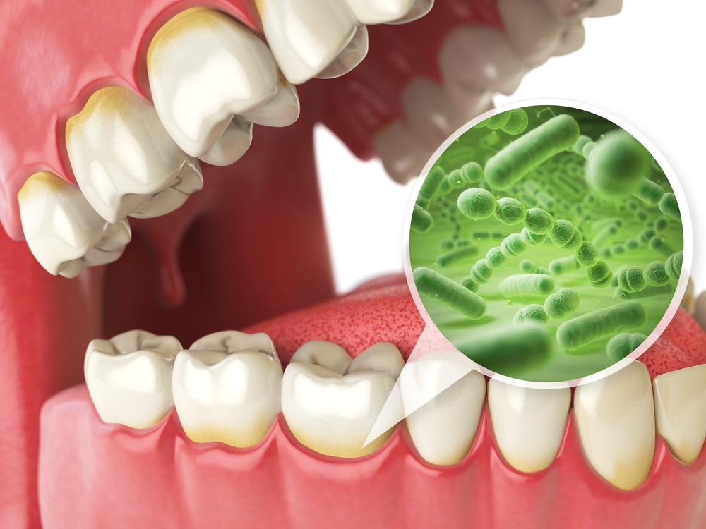cibi nemici dei denti